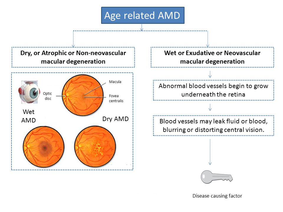 Age related AMD Dry, or Atrophic or Non-neovascular macular degeneration. Wet or Exudative or Neovascular macular degeneration.