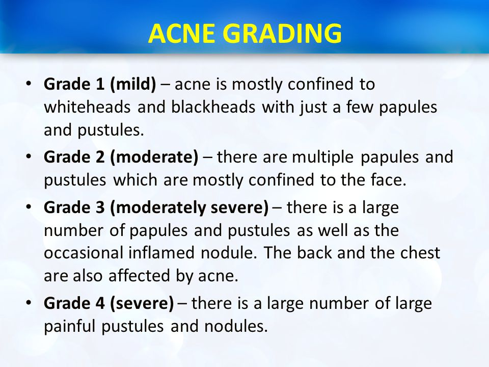 ACNE GRADING Grade 1 (mild) – acne is mostly confined to whiteheads and blackheads with just a few papules and pustules.