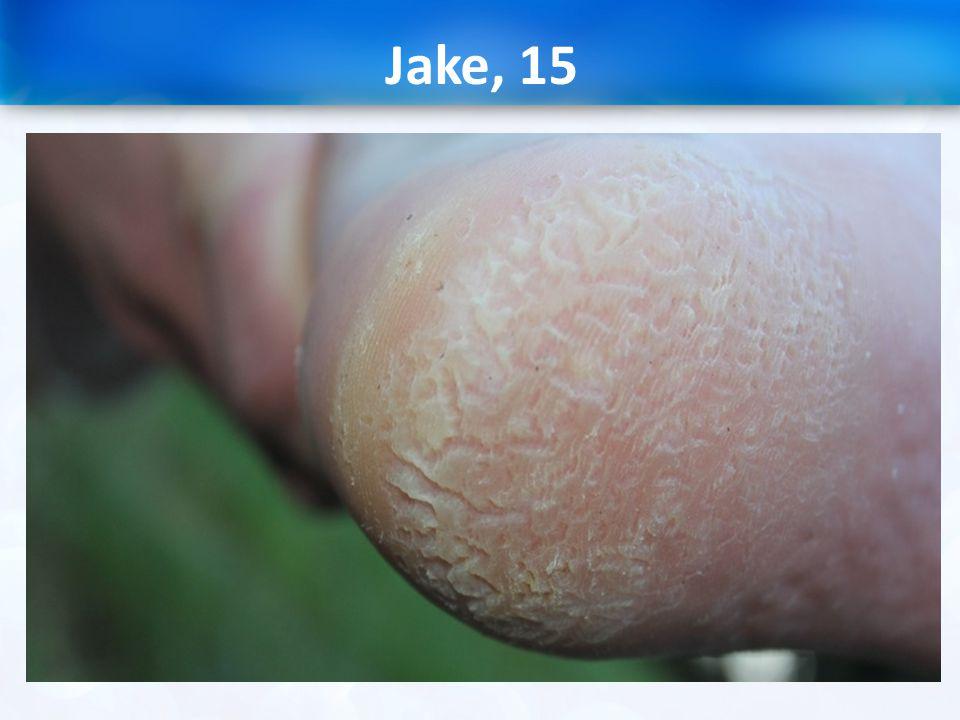 Jake, 15