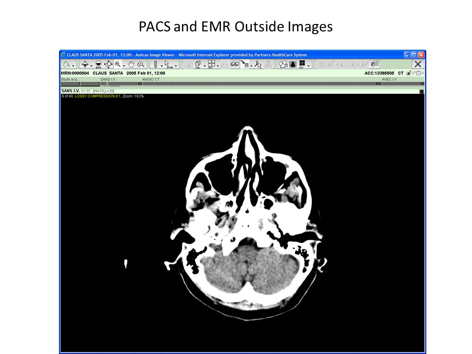 PACS and EMR Outside Images