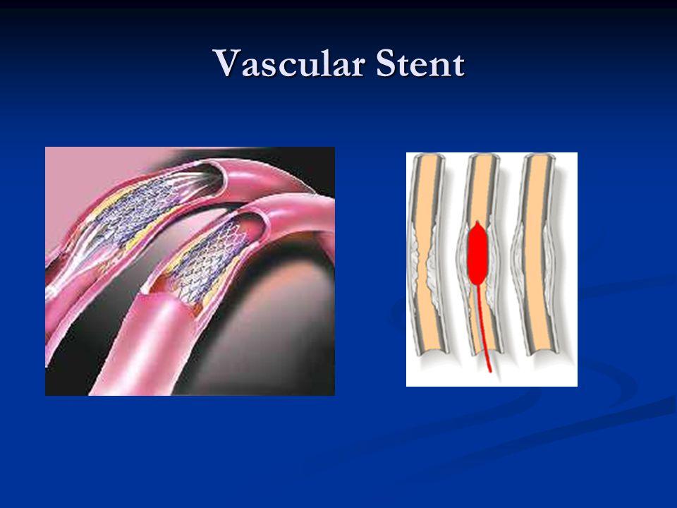 Vascular Stent