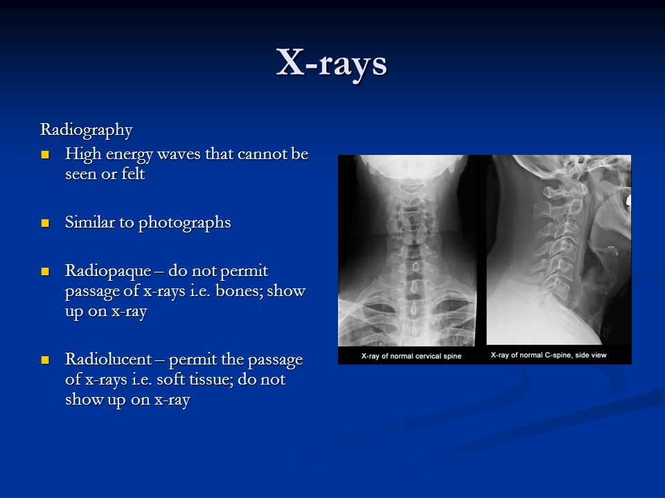X-rays Radiography High energy waves that cannot be seen or felt
