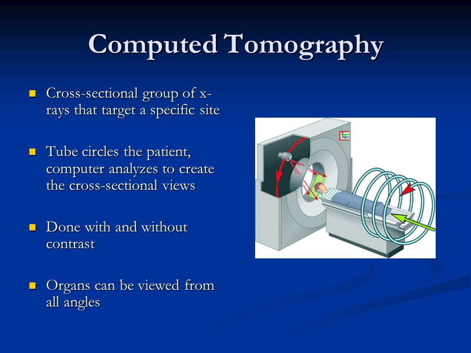 Computed Tomography Cross-sectional group of x-rays that target a specific site.