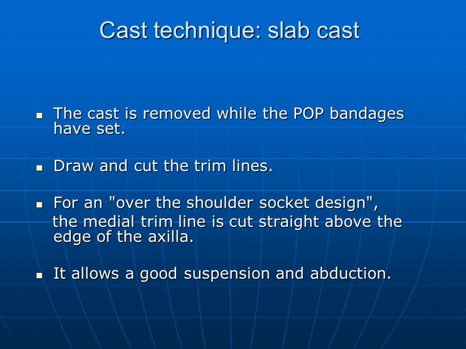 Cast technique: slab cast
