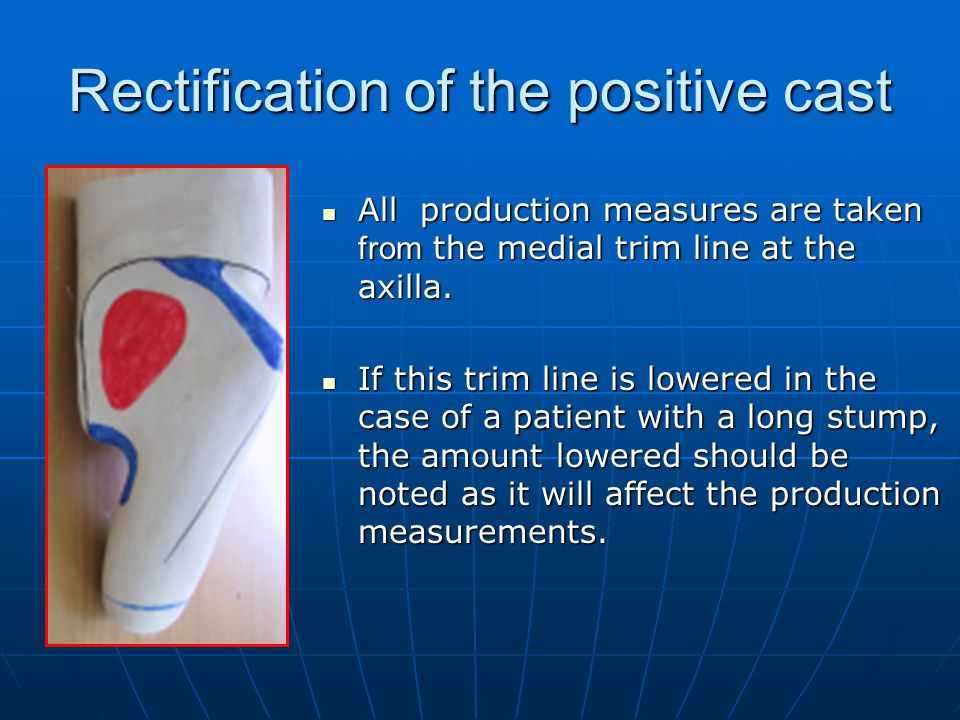 Rectification of the positive cast