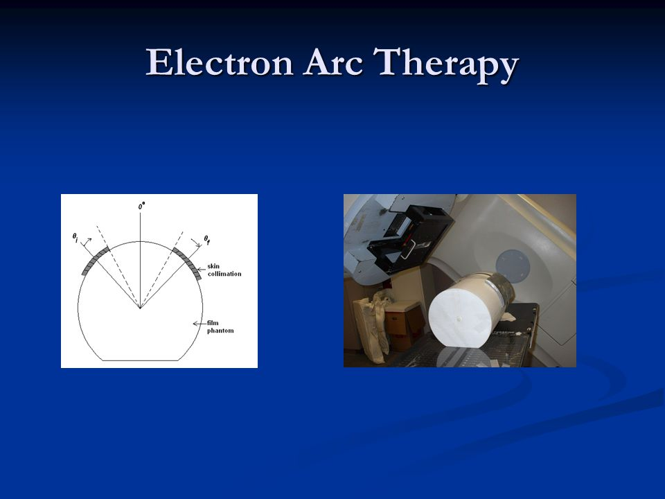 Electron Arc Therapy