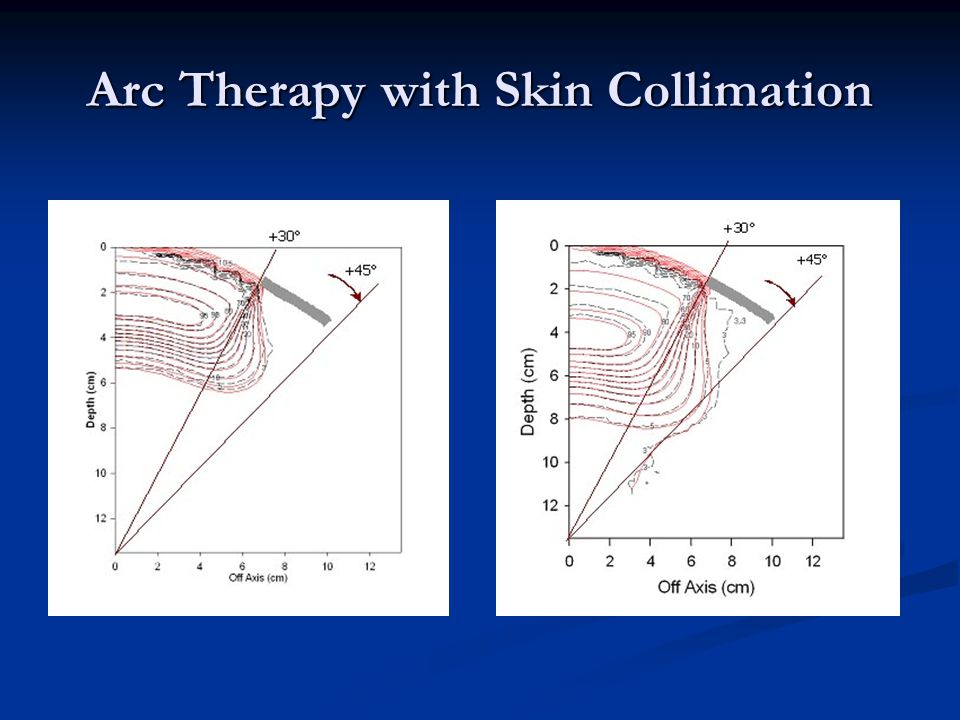 Arc Therapy with Skin Collimation