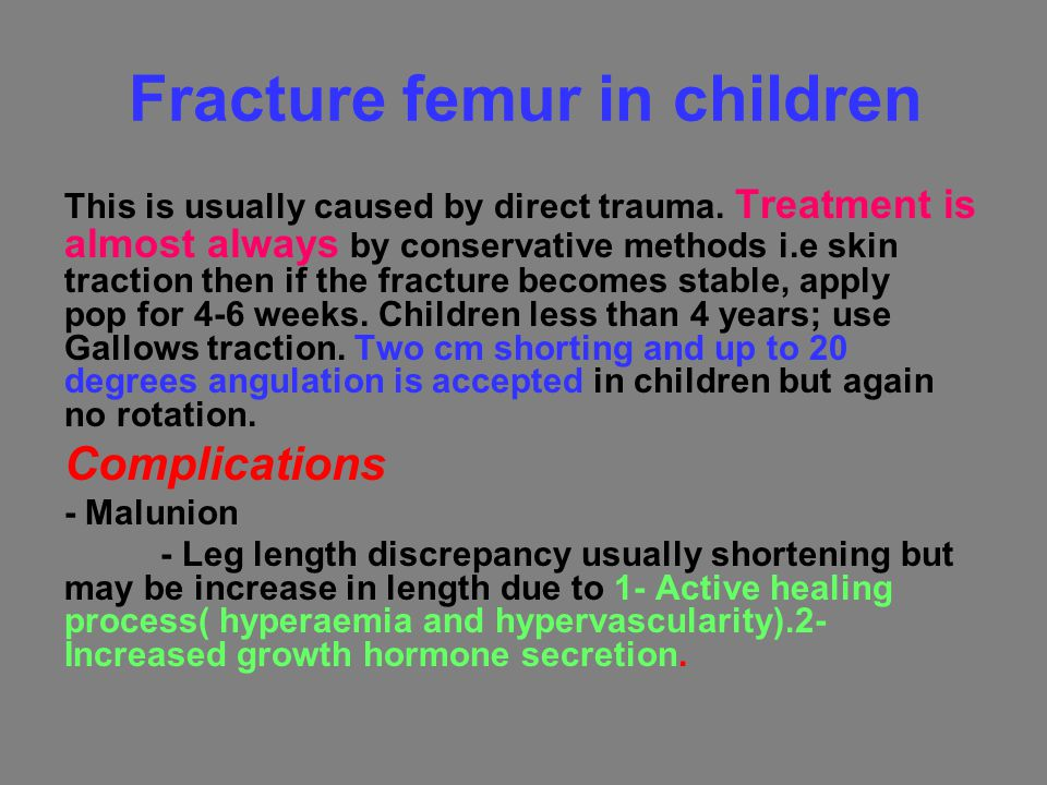 Fracture femur in children