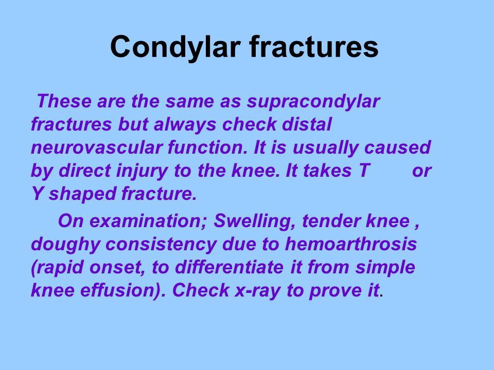 Condylar fractures