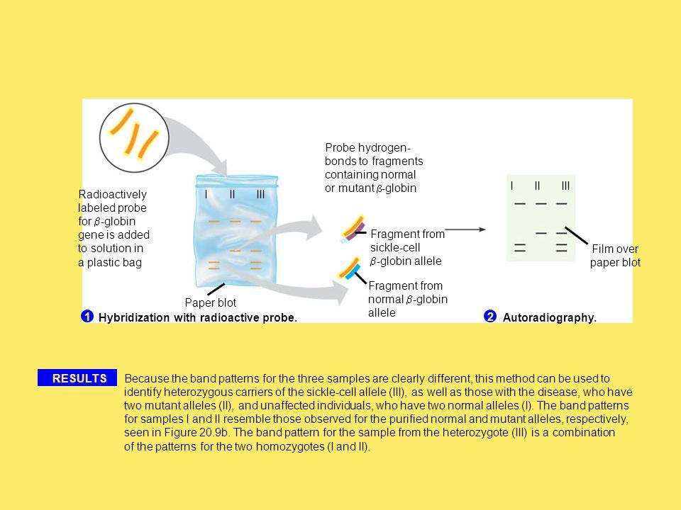 Hybridization with radioactive probe.