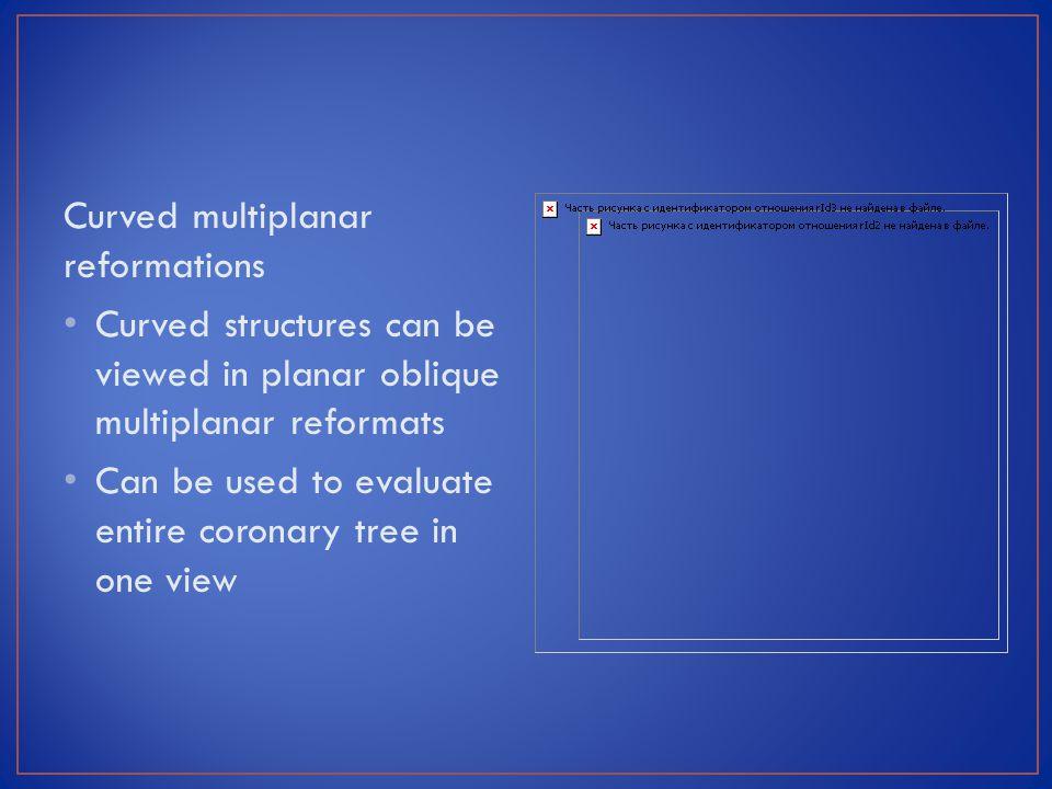 Curved multiplanar reformations