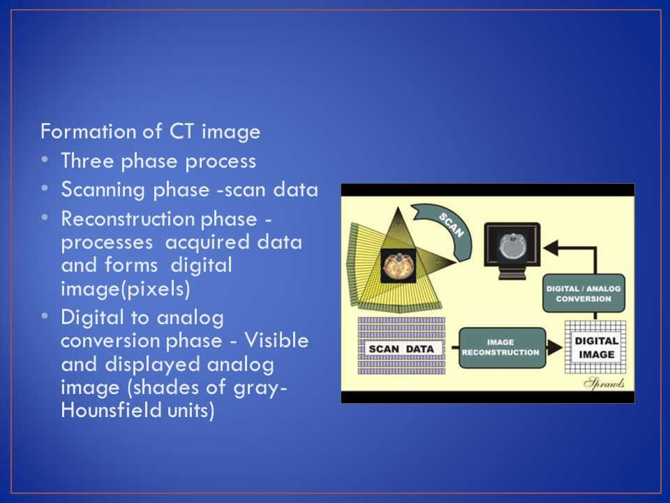 Formation of CT image Three phase process. Scanning phase -scan data.