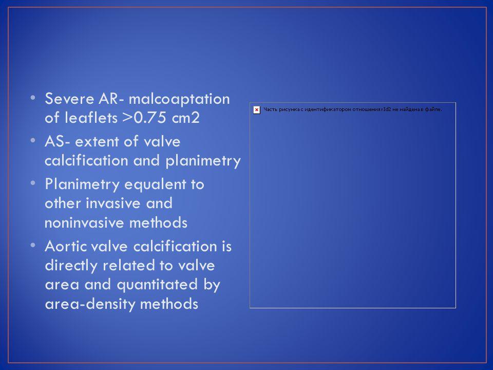 Severe AR- malcoaptation of leaflets >0.75 cm2