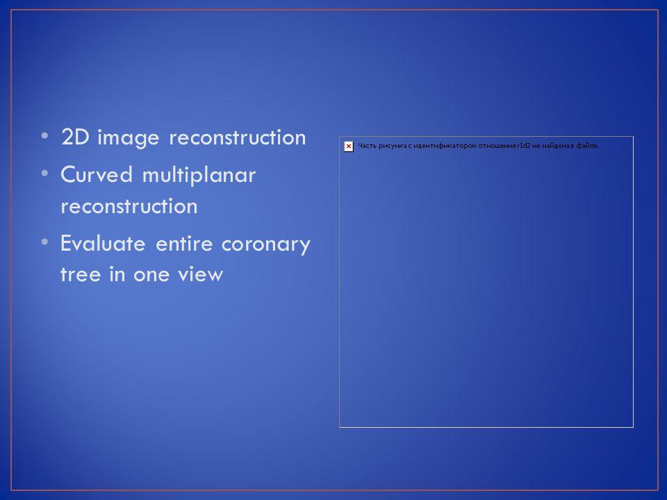 2D image reconstruction