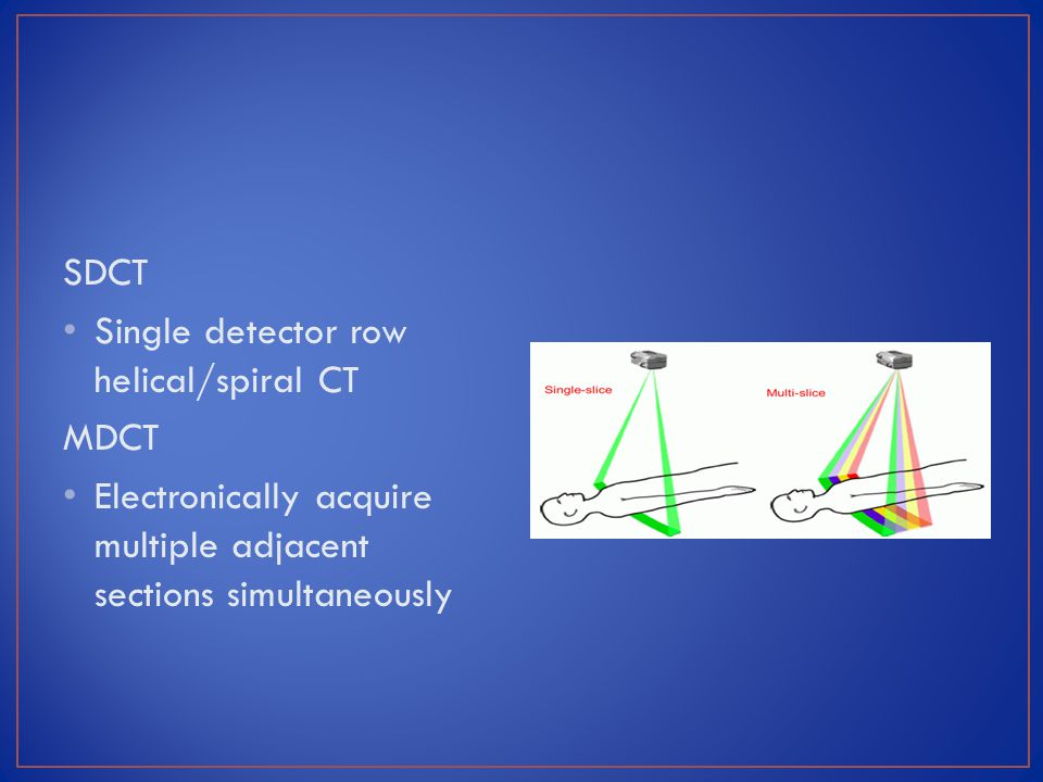SDCT Single detector row helical/spiral CT. MDCT.