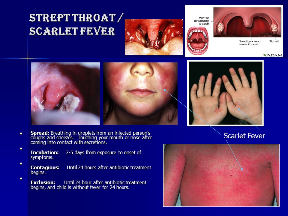 Strept Throat / scarlet fever