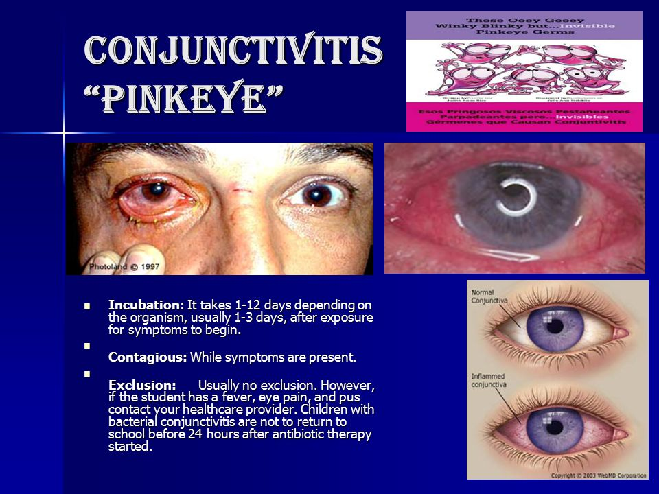 conjunctivitis and health care provider Pink eye in newborns what is pink eye pink eye, also called conjunctivitis, is the inflammation of the white of the eye a health care provider can diagnose.