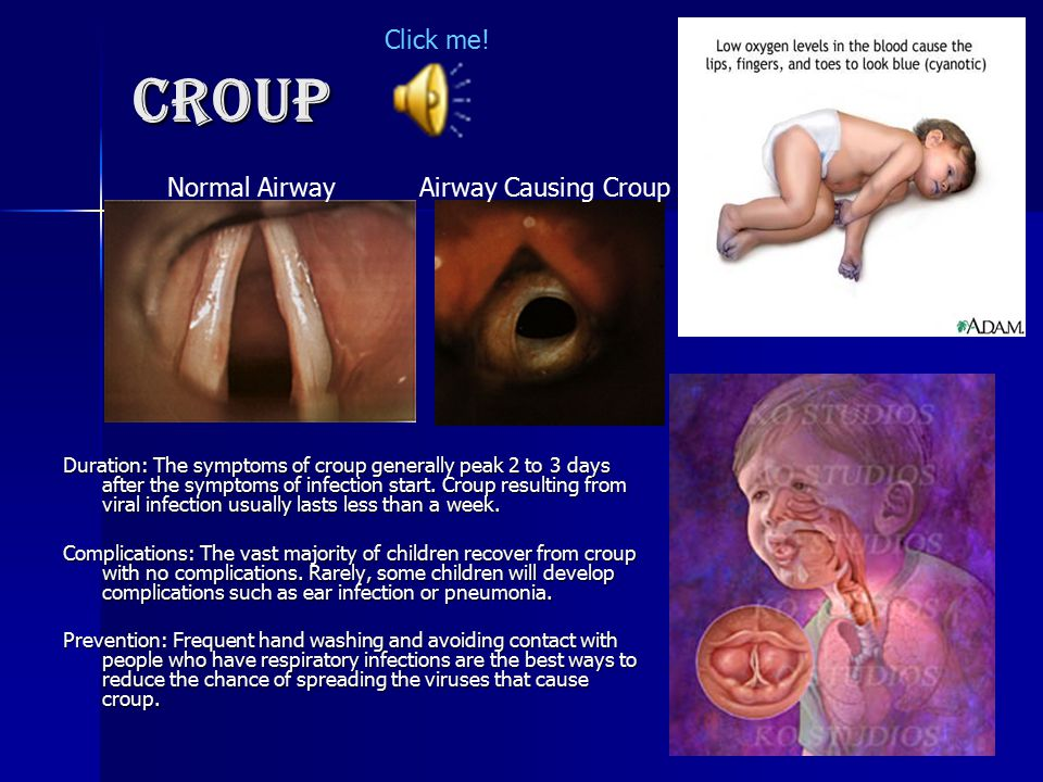 Croup Click me! Normal Airway Airway Causing Croup