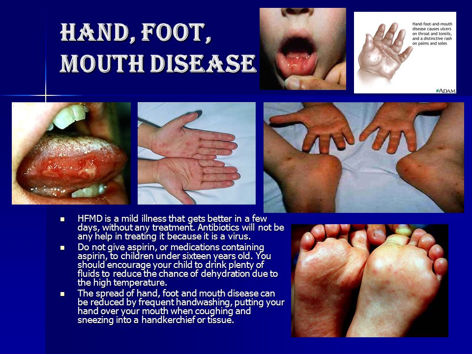 Hand, Foot, Mouth Disease