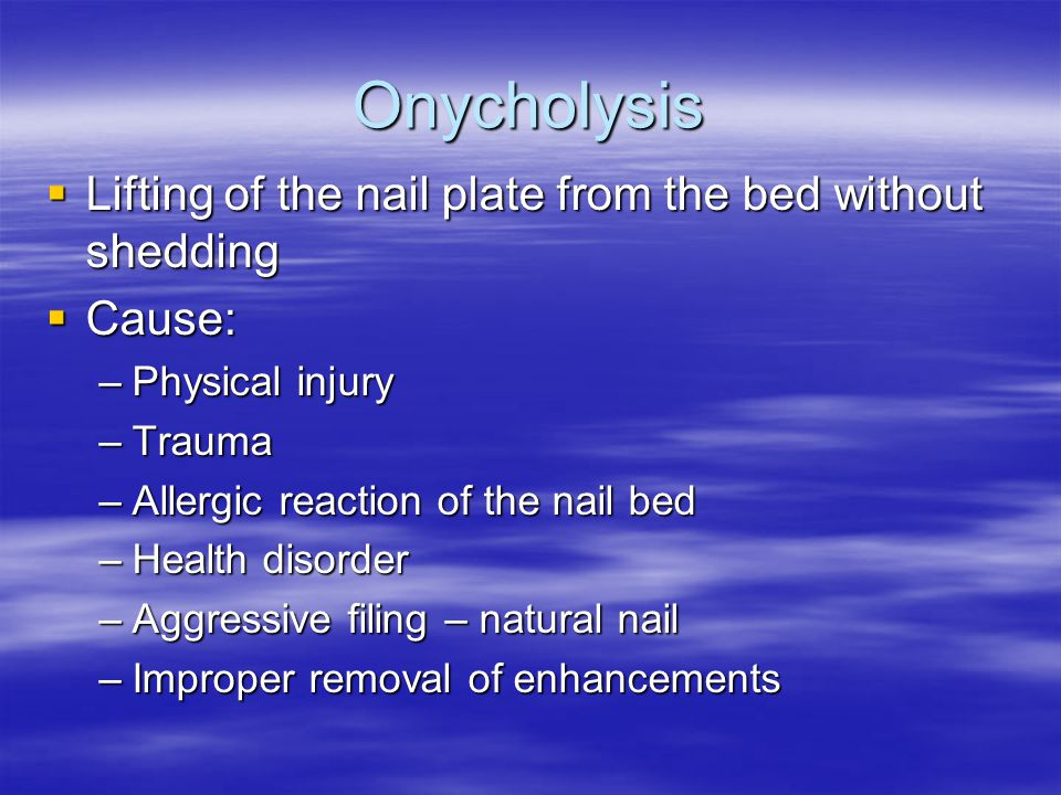 Onycholysis Lifting of the nail plate from the bed without shedding
