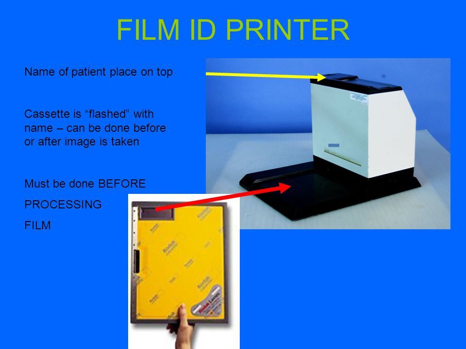 FILM ID PRINTER Name of patient place on top