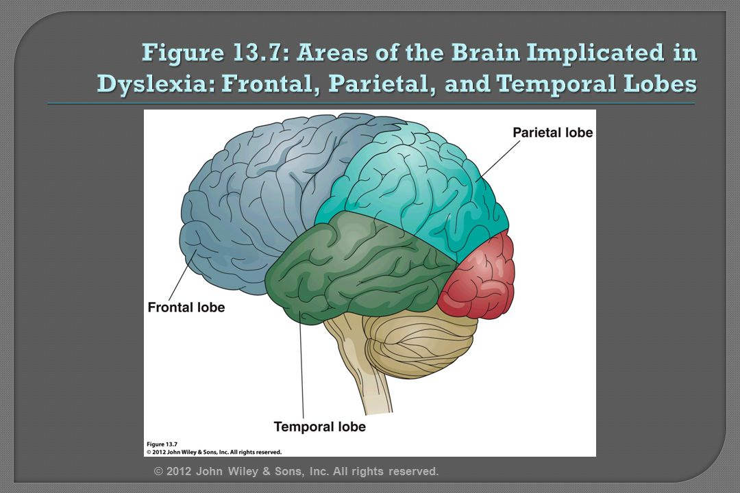 4/12/2017 Figure 13.7: Areas of the Brain Implicated in Dyslexia: Frontal, Parietal, and Temporal Lobes.