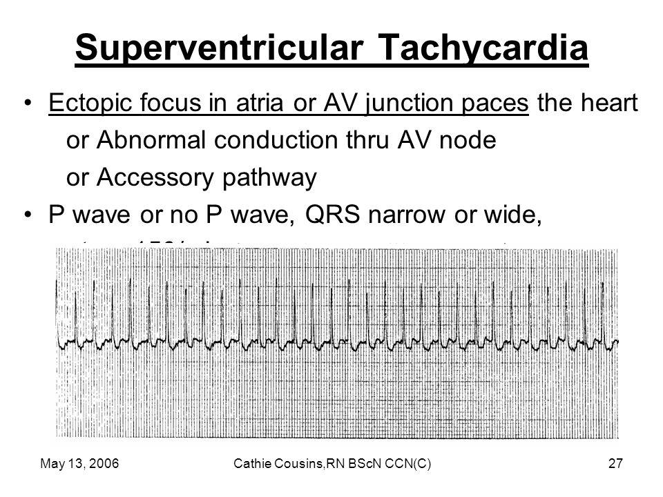 Superventricular Tachycardia