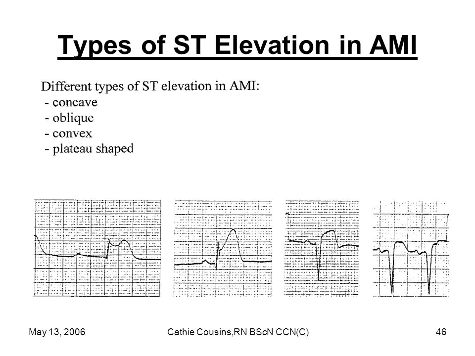 Types of ST Elevation in AMI