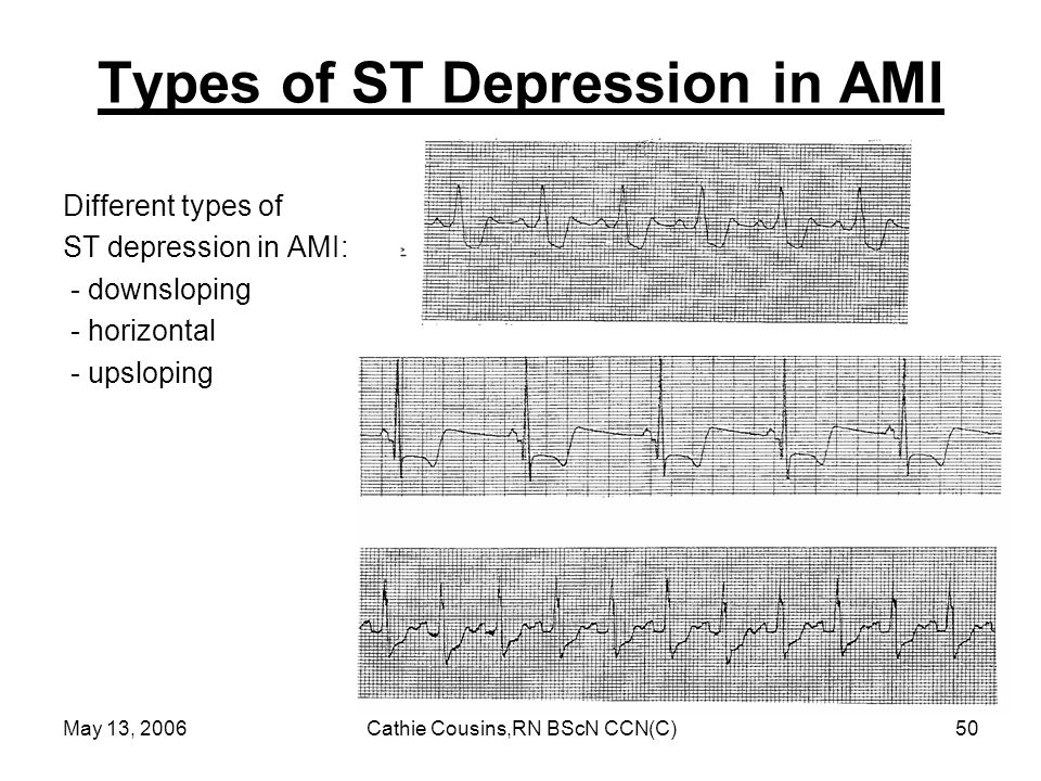 Types of ST Depression in AMI
