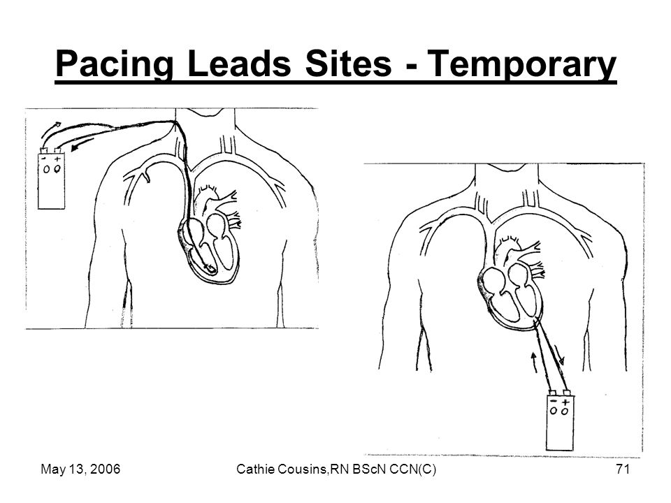 Pacing Leads Sites - Temporary