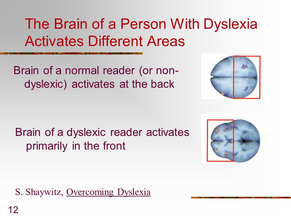 The Brain of a Person With Dyslexia Activates Different Areas
