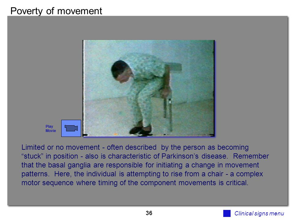 Poverty of movement Play. Movie.