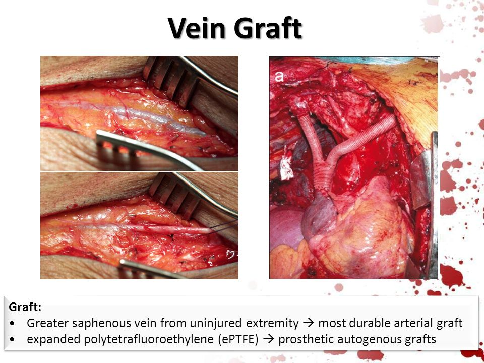 Vein Graft Graft: Greater saphenous vein from uninjured extremity  most durable arterial graft.