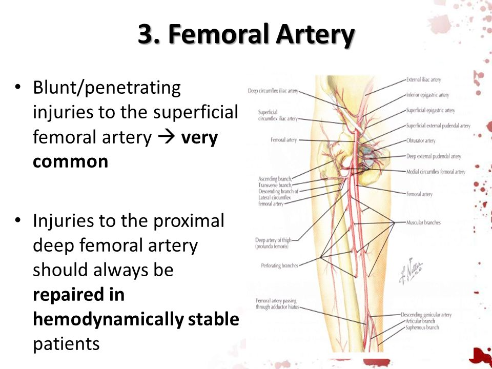 3. Femoral Artery Blunt/penetrating injuries to the superficial femoral artery  very common.