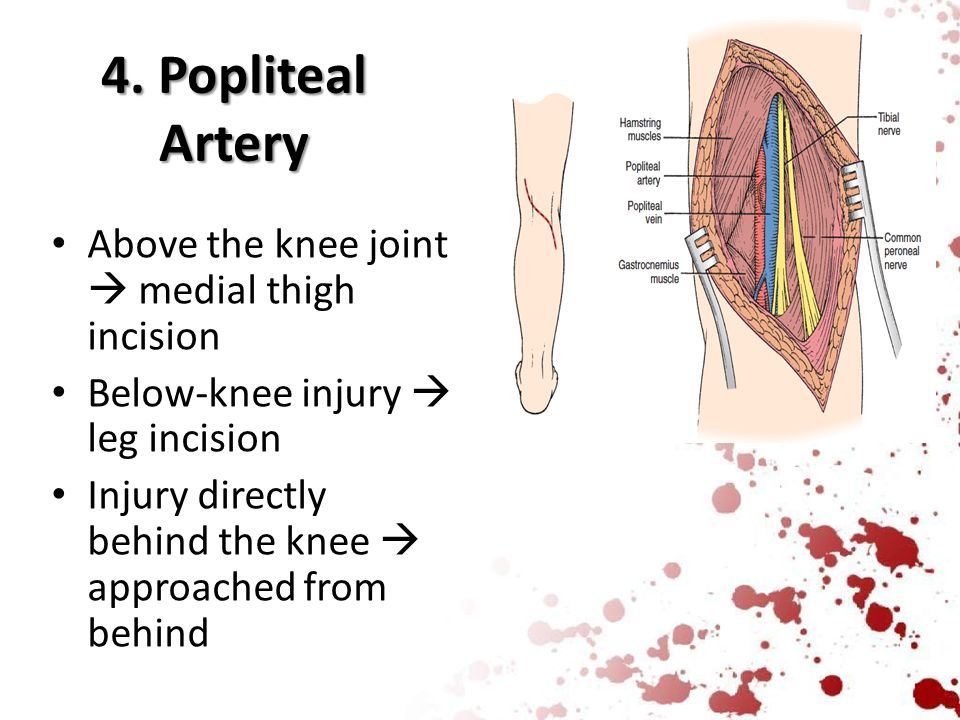4. Popliteal Artery Above the knee joint  medial thigh incision