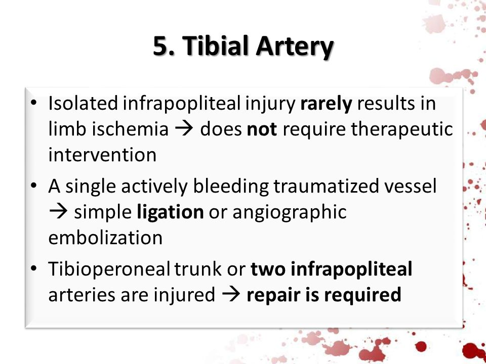 5. Tibial Artery Isolated infrapopliteal injury rarely results in limb ischemia  does not require therapeutic intervention.