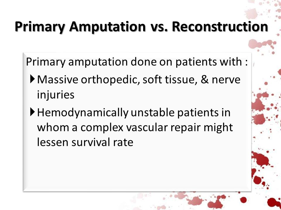 Primary Amputation vs. Reconstruction