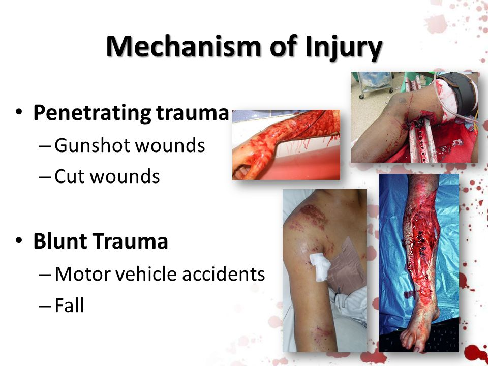 Mechanism of Injury Penetrating trauma Blunt Trauma Gunshot wounds