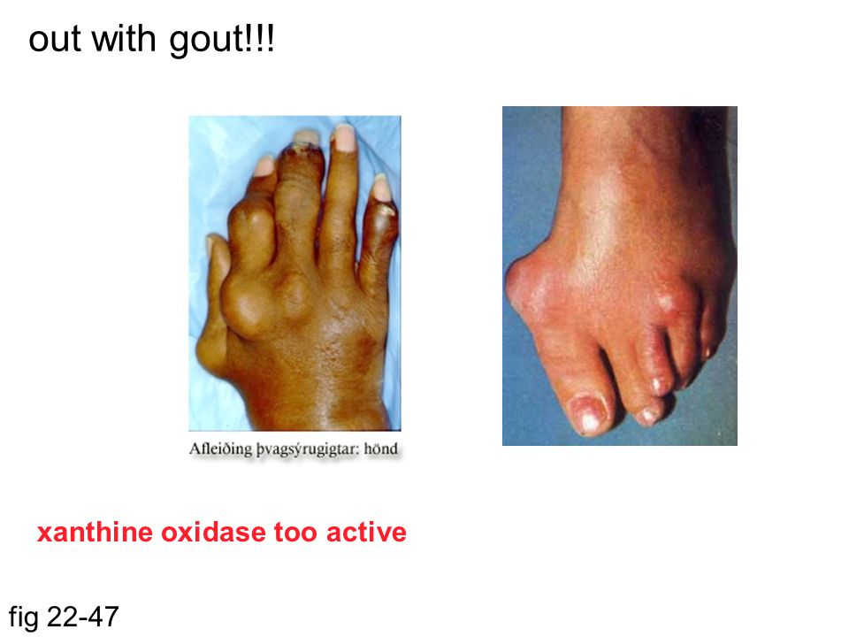 out with gout!!! xanthine oxidase too active fig 22-47