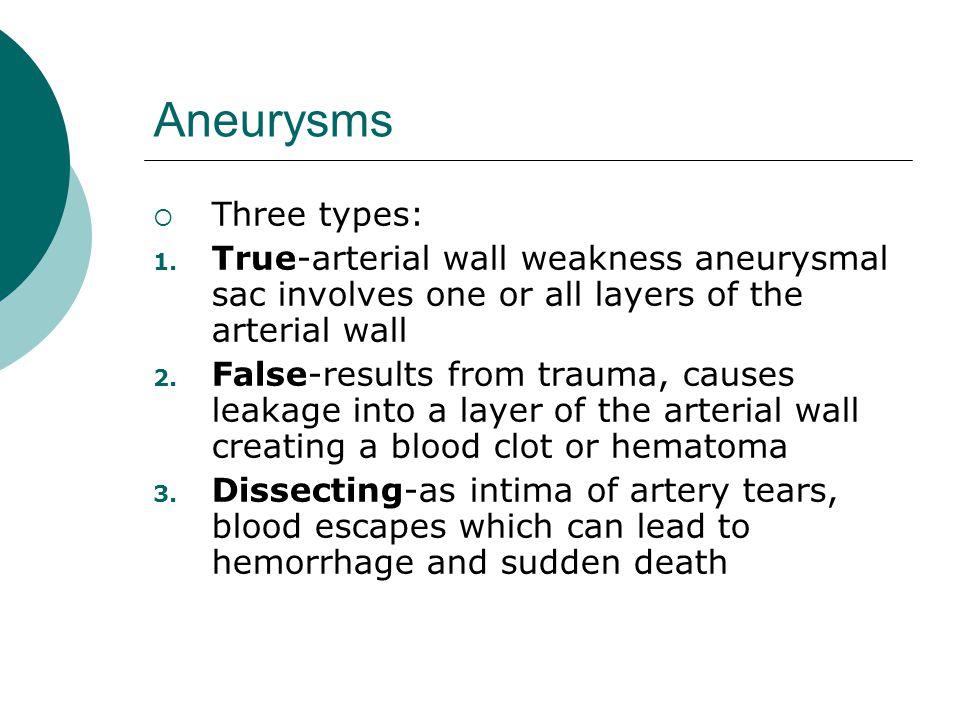 Aneurysms Three types: