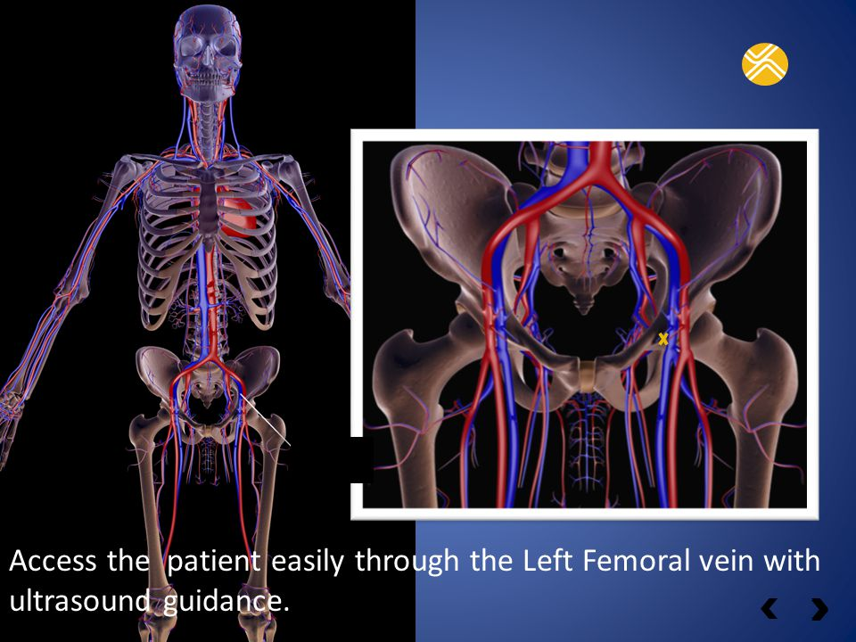 Catheter entry-point Femoral access vein.