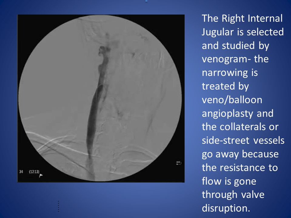 The Right Internal Jugular is selected and studied by venogram- the narrowing is treated by veno/balloon angioplasty and the collaterals or side-street vessels go away because the resistance to flow is gone through valve disruption.