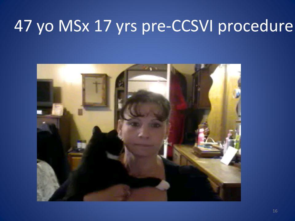 47 yo MSx 17 yrs pre-CCSVI procedure