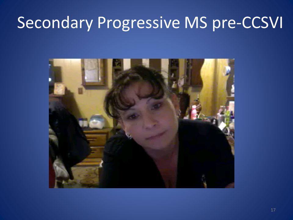 Secondary Progressive MS pre-CCSVI