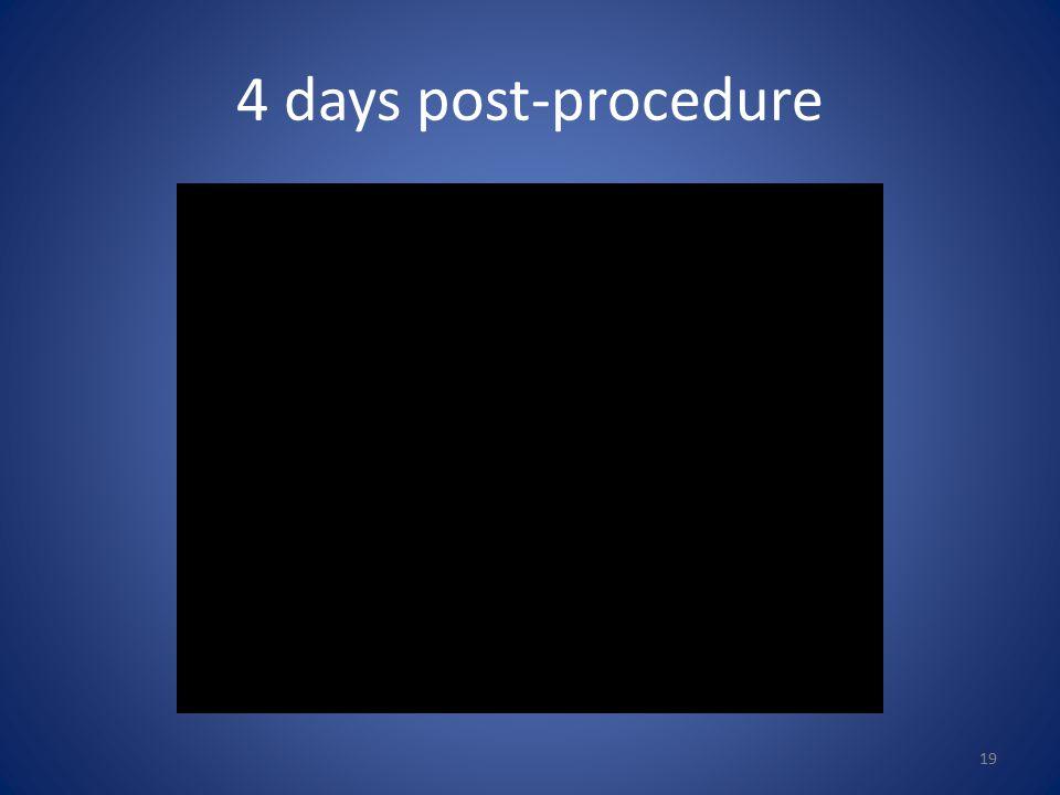 4 days post-procedure