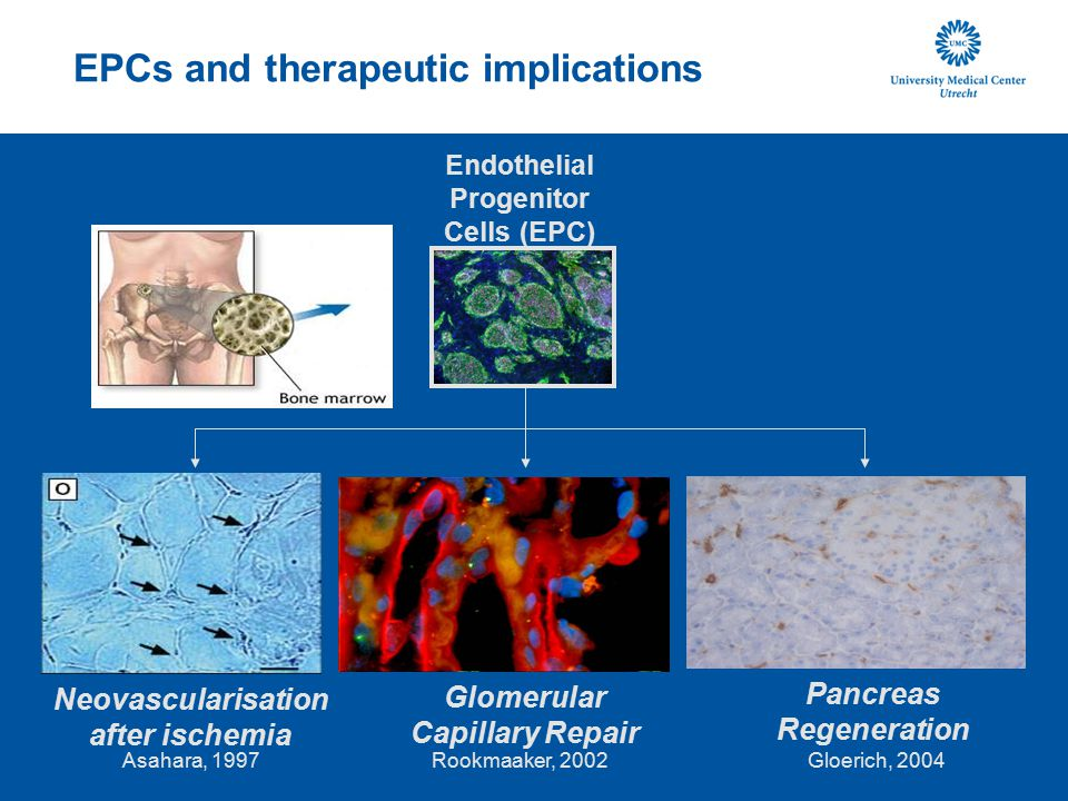 EPCs and therapeutic implications