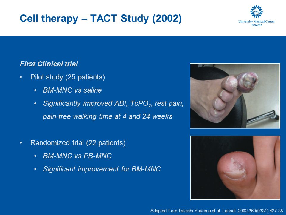 Cell therapy – TACT Study (2002)