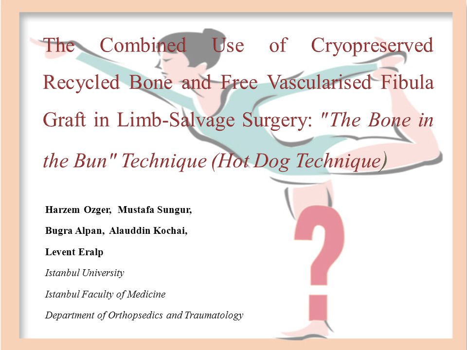 The Combined Use of Cryopreserved Recycled Bone and Free Vascularised Fibula Graft in Limb-Salvage Surgery: ″The Bone in the Bun″ Technique (Hot Dog Technique)