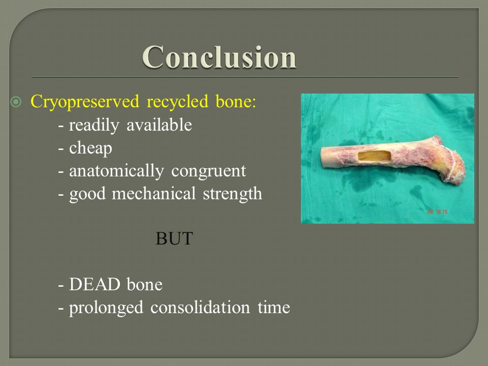 Conclusion Cryopreserved recycled bone: - readily available - cheap