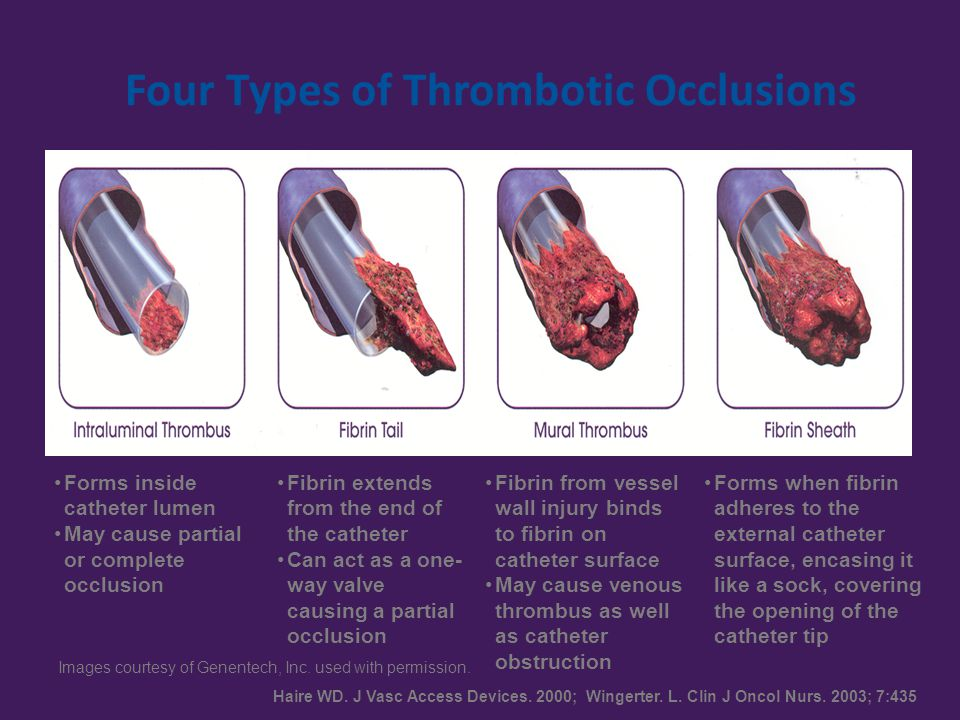 Four Types of Thrombotic Occlusions